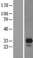 NBL1-14550 - PNMT Lysate