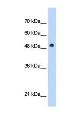 NBP1-54611 - PNPLA3 / ADPN