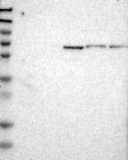 NBP1-81153 - Podocan / PODN