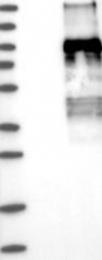 NBP1-83348 - Podocalyxin / PODXL