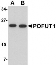 NBP1-76940 - POFUT1
