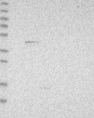 NBP1-83227 - POLG2 / MTPOLB