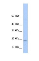 NBP1-52917 - POLR1D