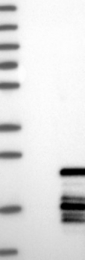 NBP1-82655 - POLR1D