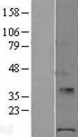 NBL1-14577 - POLR1D Lysate