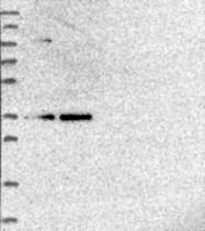NBP1-80818 - POLR2C
