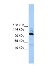 NBP1-54363 - POLR3B / RPC2