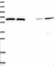 NBP1-84621 - POLR3E / RPC5