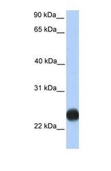 NBP1-69491 - TMEM123 / Porimin