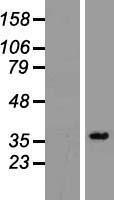 NBL1-14623 - PPA2 Lysate