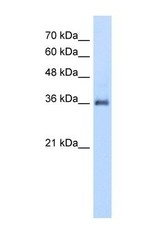 NBP1-59011 - PPAP2A / LPP1
