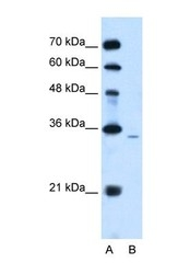 NBP1-59025 - PPAP2A / LPP1
