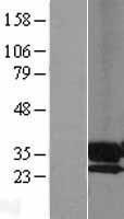 NBL1-14625 - PPAP2A Lysate