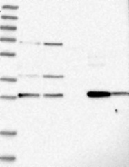 NBP1-82825 - PPAP2B / LPP3