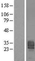 NBL1-14626 - PPAP2B Lysate