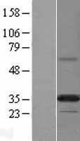 NBL1-14629 - PPAPDC2 Lysate