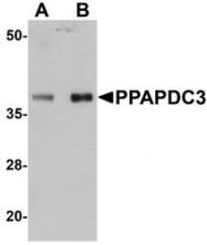 NBP1-76246 - PPAPDC3