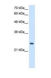 NBP1-56489 - PPCDC