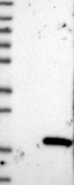 NBP1-88304 - PPDPF