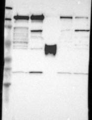NBP1-83192 - PPFIBP1