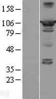 NBL1-14643 - PPFIBP2 Lysate
