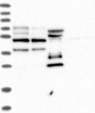 NBP1-89480 - Periphilin 1