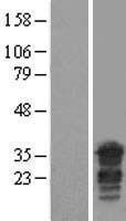 NBL1-14644 - PPHLN1 Lysate