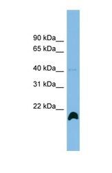 NBP1-57630 - Cyclophilin H / PPIH