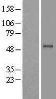 NBL1-14659 - PPM1B Lysate
