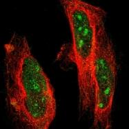 NBP1-86649 - Protein phosphatase 1E / PPM1E