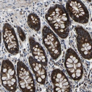 NBP1-86650 - Protein phosphatase 1E / PPM1E
