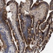 NBP1-85037 - Protein phosphatase 1K / PPM1K