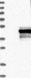 NBP1-85035 - Protein phosphatase 1K / PPM1K