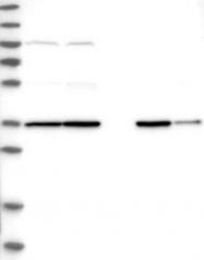 NBP1-85036 - Protein phosphatase 1K / PPM1K