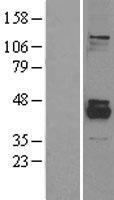 NBL1-14665 - PPM1K Lysate