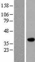 NBL1-14690 - PPP2CB Lysate