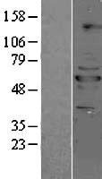 NBL1-14701 - PPP2R5B Lysate