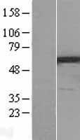 NBL1-14706 - PPP3CC Lysate