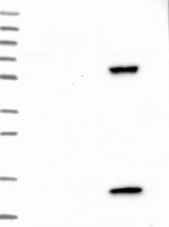 NBP1-81393 - PPP4R4