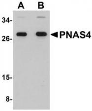 NBP1-76320 - PPPDE1