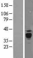 NBL1-14713 - PPT1 Lysate