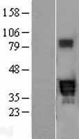 NBL1-14714 - PPT2 Lysate