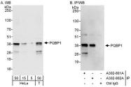 NBP1-47270 - PQBP1