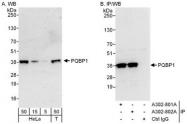 NBP1-47271 - PQBP1