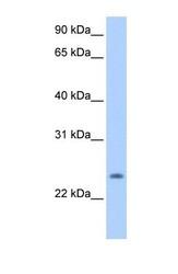 NBP1-62482 - PQLC1