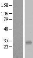 NBL1-14718 - PQLC1 Lysate