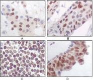 NBP1-47406 - MAPKAP Kinase-5