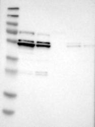NBP1-87231 - MAPKAP Kinase-5