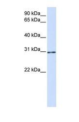 NBP1-55261 - AKT1S1 / PRAS40