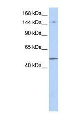 NBP1-52842 - PRDM15